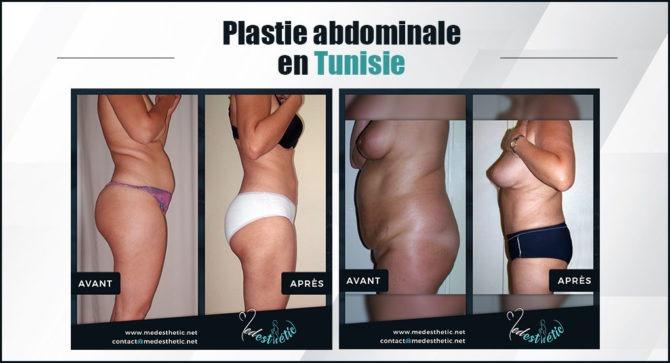 plastie-abdominale