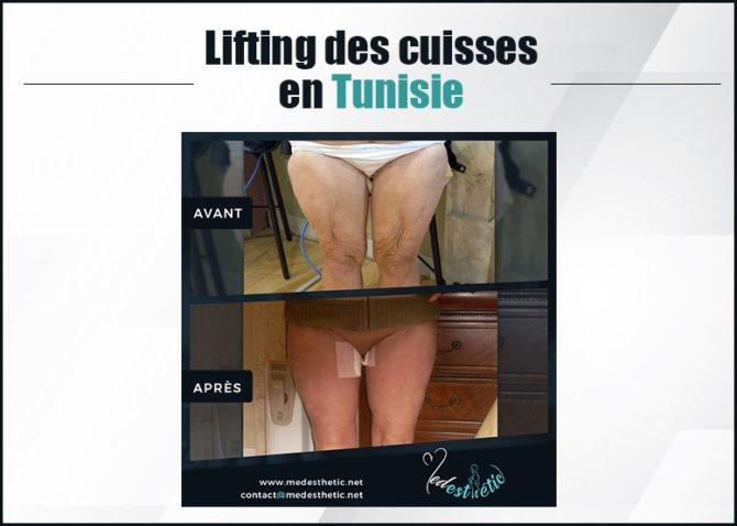 lifting-des-cuisses
