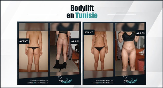 body lift en Tunisie