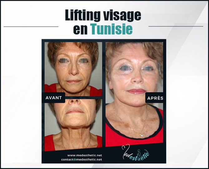 lifting-visage-tunisie