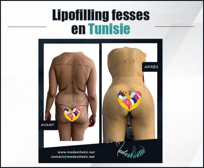 lipofilling fesses en tunisie