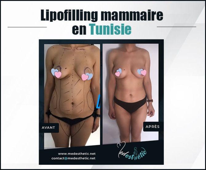 lipofilling_mammaire