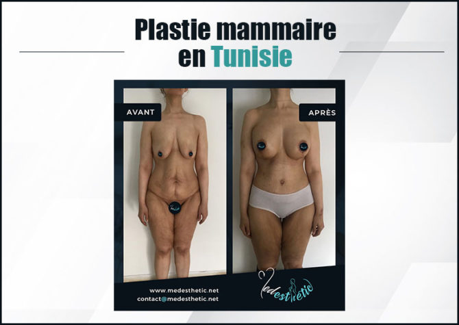 plastie-mammaire