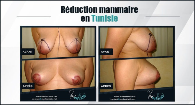 reduction-mammaire